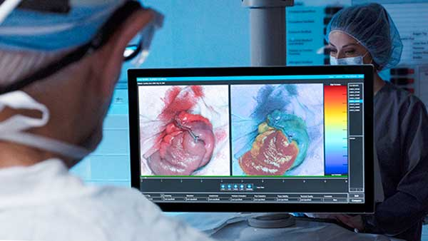 Image of doctor reviewing heart images on Certes